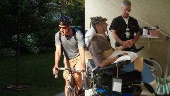Charles Pazdernik - Before and After His Bicycle Accident